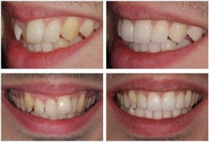 Get the perfect smile with invisible braces Sloan Dental