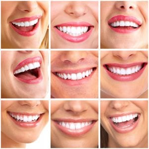 Is having straight teeth and a perfect smile really that important? Sloan Dental