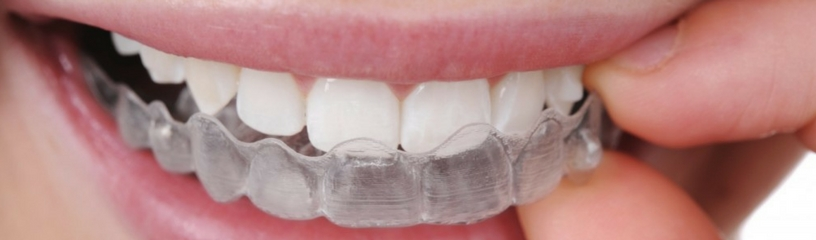 Chapelhall Dental Services